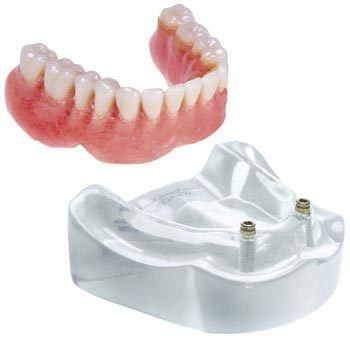 lower implant denture